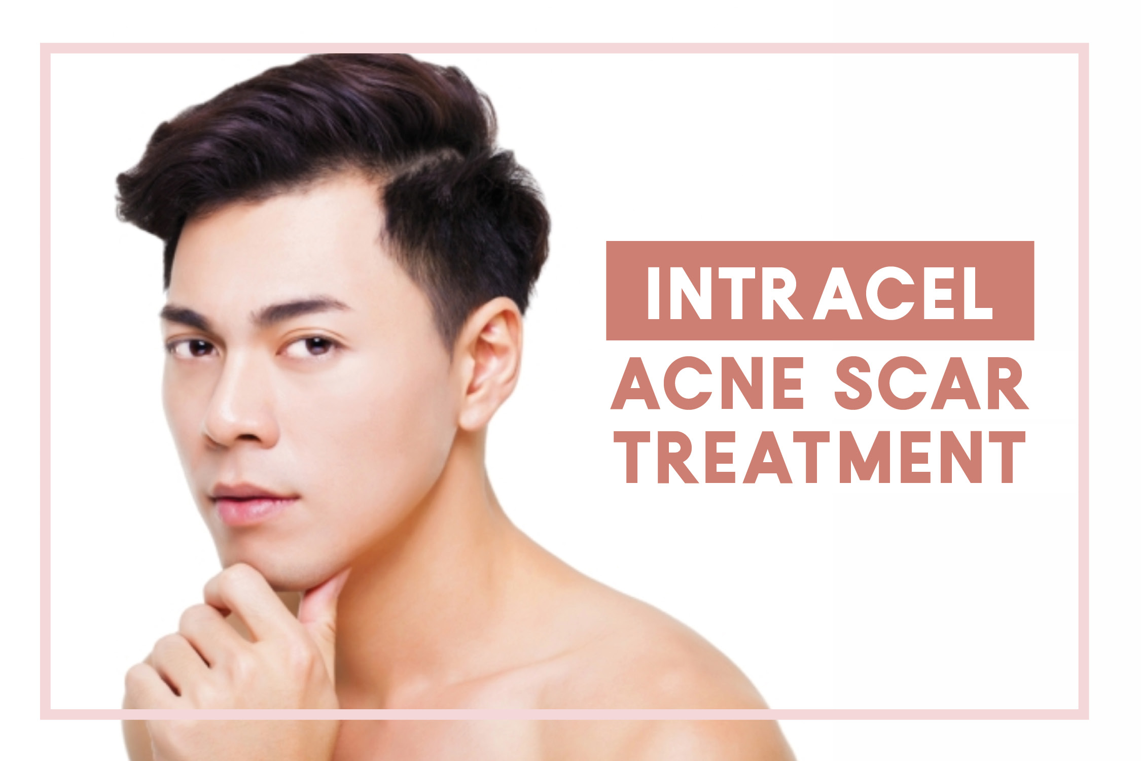 Intracel Acne Scars Treatment