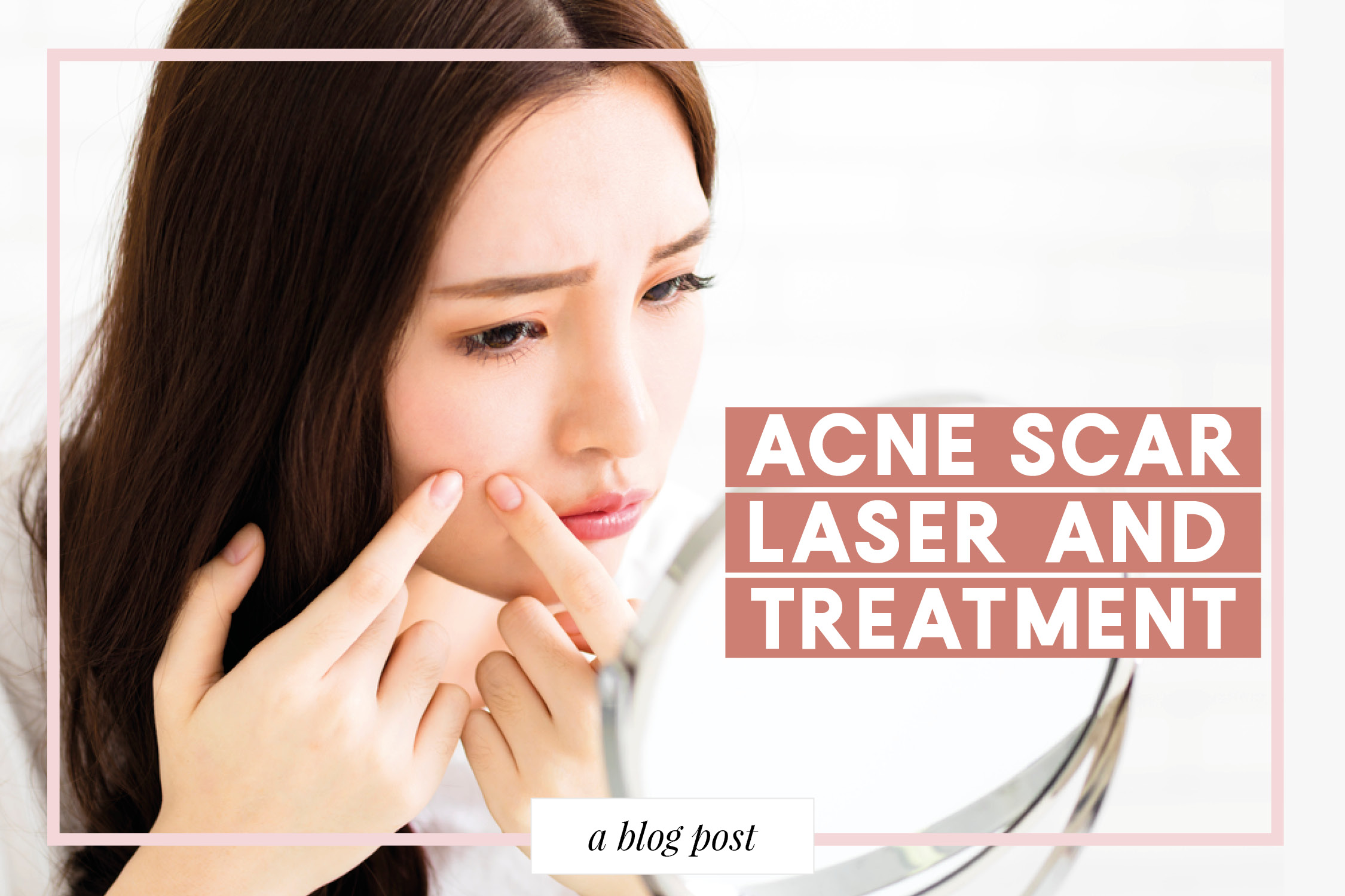 Acne Scars Laser and Treatment in Singapore – Lux Medical Aesthetic Clinic
