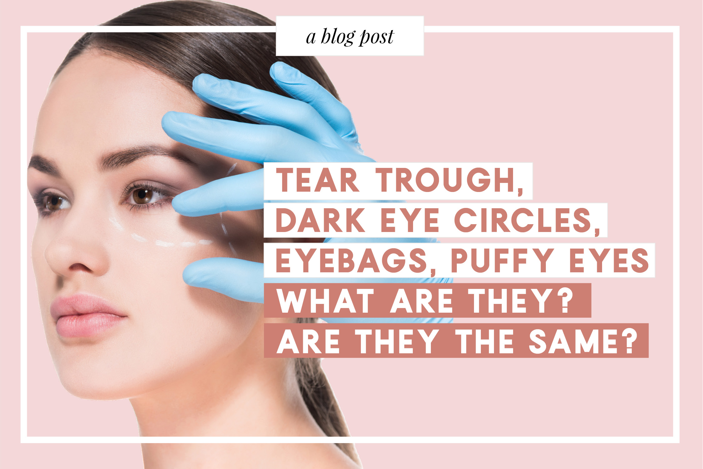 Tear Trough, Dark Eye Circles, Eyebags, Puffy Eyes what are they? Are they the same?