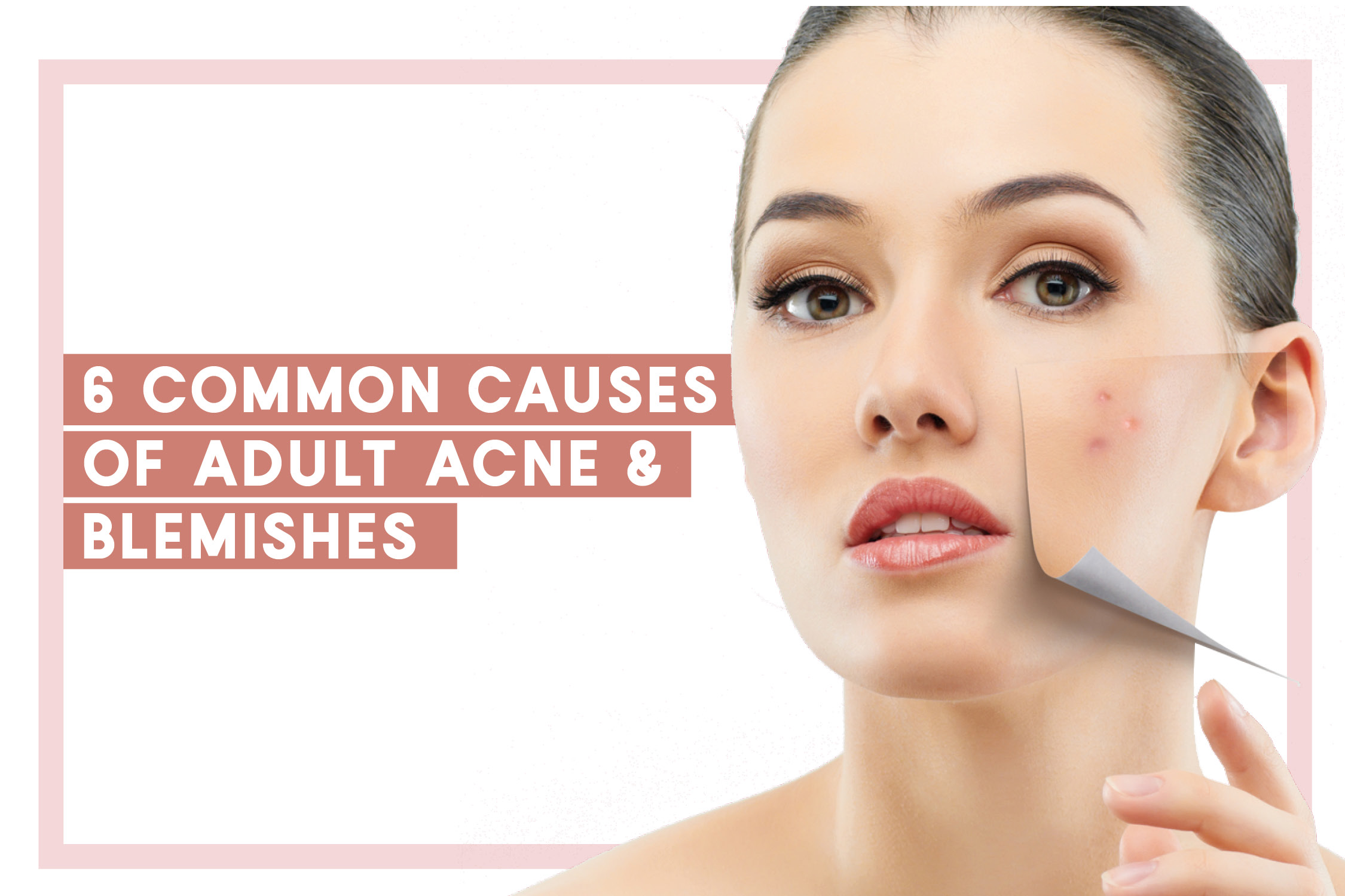 6 Common Causes of Adult Acne & Blemishes