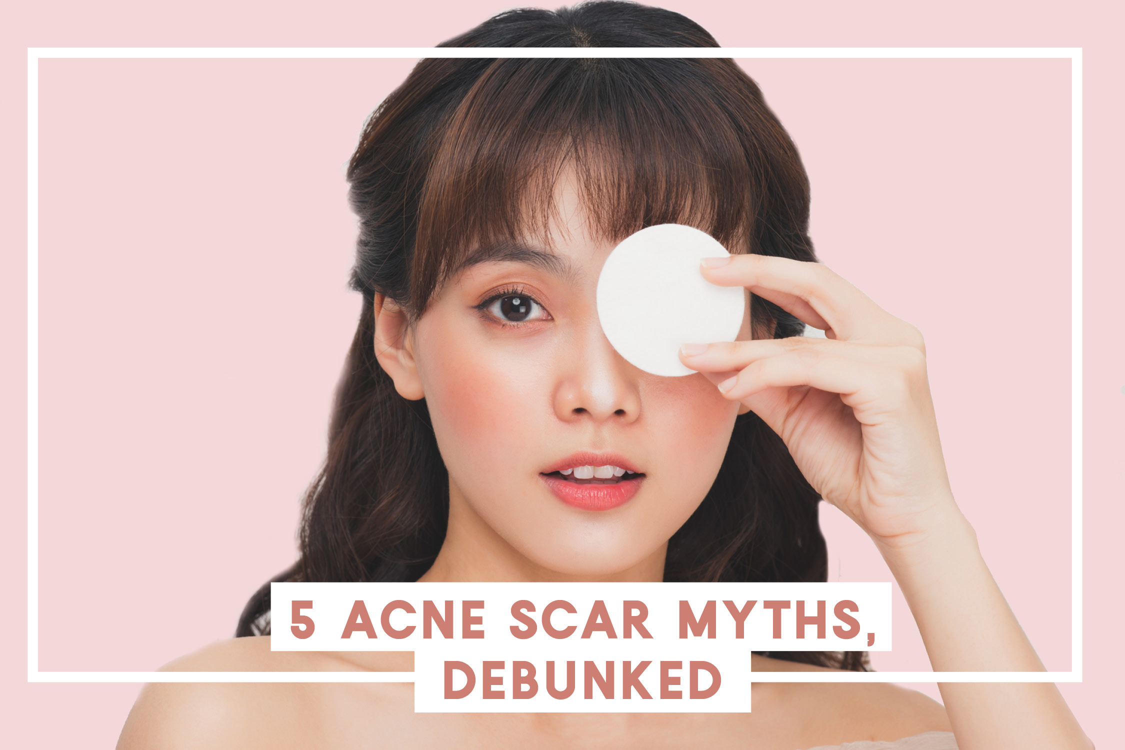 5 Acne Scar Myths Debunked