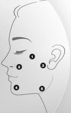 profhilo face treatment areas