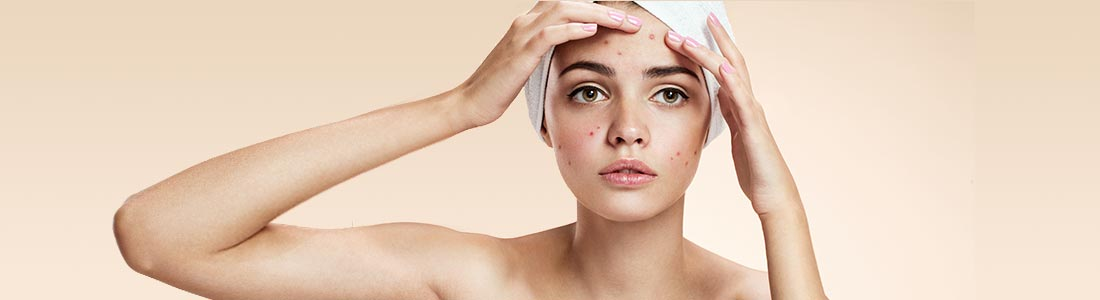 women with acne on face