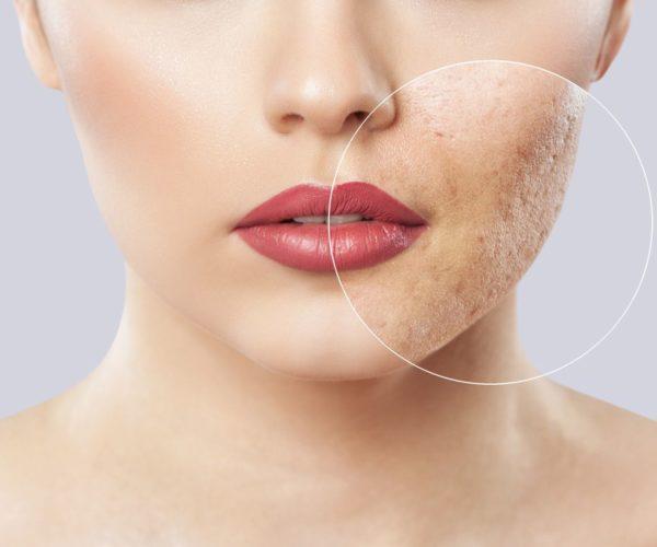acne scar zoom in