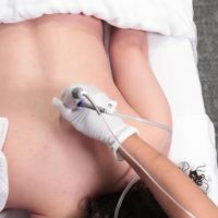 lux-tattoo-removal-service-2