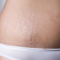 stretch-marks-2